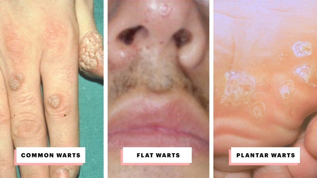 Warts treatment nhs Wart virus nhs